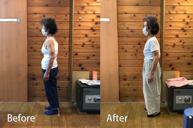 1回目の施術から姿勢改善の効果を実感